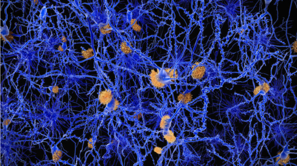 Scientific image of neurons.